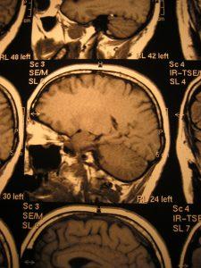 Head X Ray